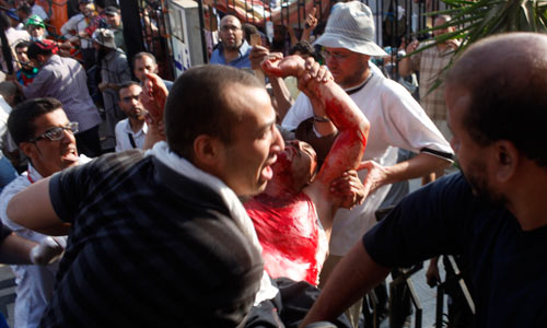 A wounded Muslim Brotherhood supporter outside the Republican Guard club
